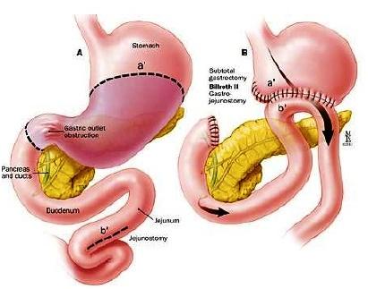 Διατροφικές Οδηγίες μετά από γαστρεκτομή
